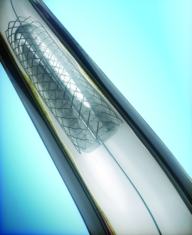 Coronary Angioplasty procedure - ballon with stent opening lumen